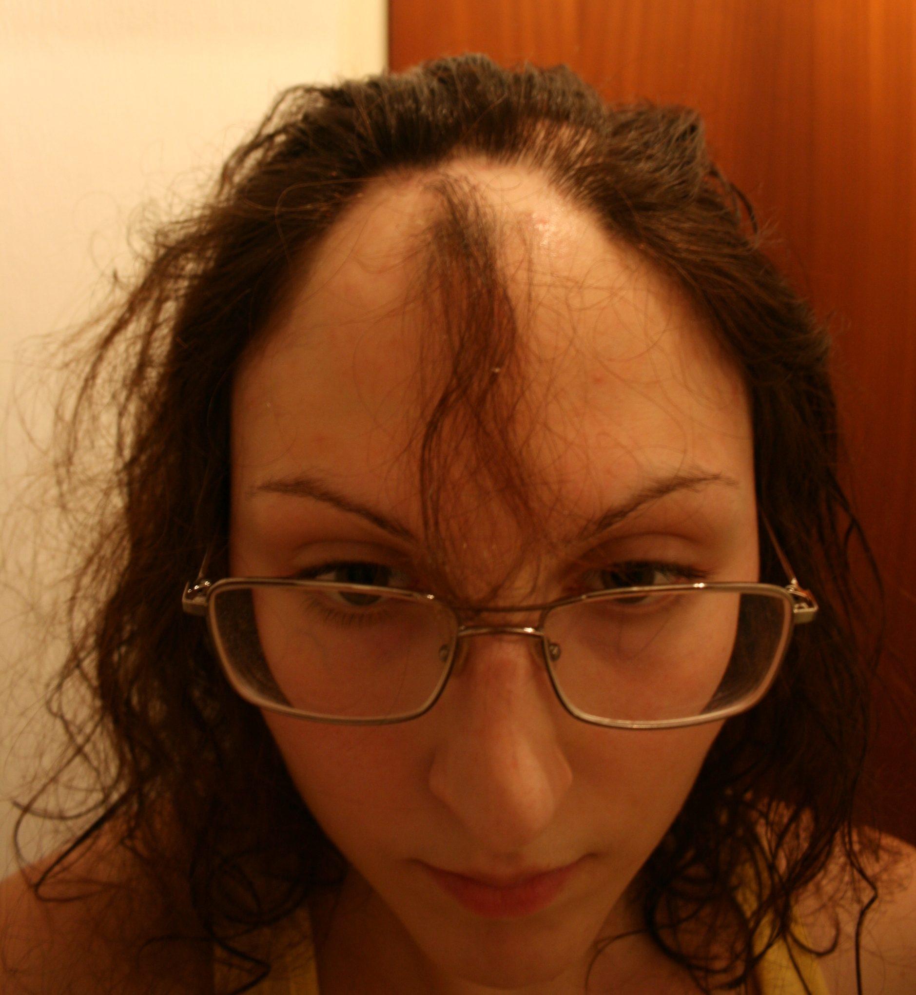 sköldkörtel tappar hår